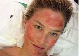 FaceLift with Vampire Treatment